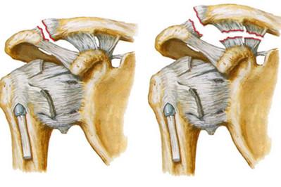 Разрыв связки плечевого сустава что кушать чтобы суставы не болели